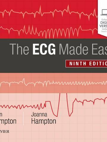 alternate image of Ecg Made Easy