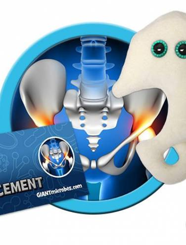 image of Giant Microbes Hip Replacement  Pd-4003
