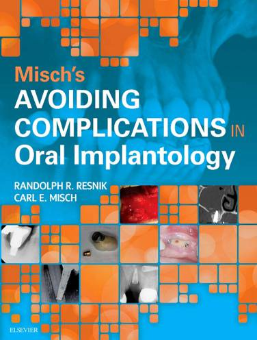 image of Complications In Oral Implantology