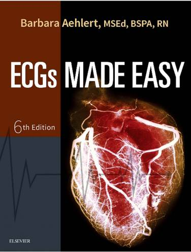 image of Ecgs Made Easy