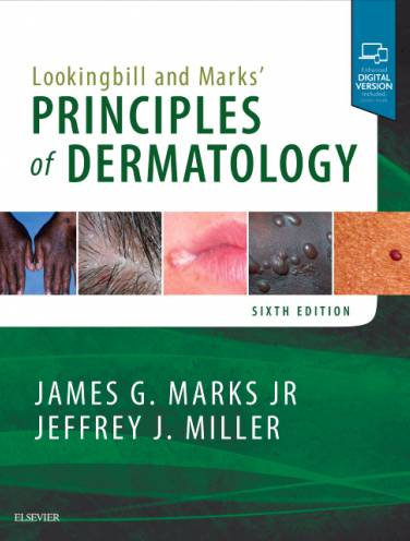 image of Lookingbill And Marks Principles Of Dermatology